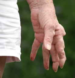 The Word Arthritis Means Inflammation Of The Joint But It Is Generally Used To Cover Most Of The Inflammatory Conditions That Affect Muscles